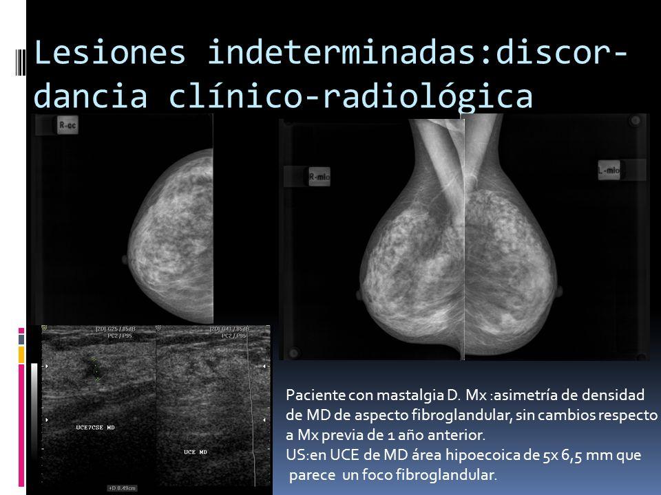 Lesiones indeterminadas:discor-dancia clínico-radiológica