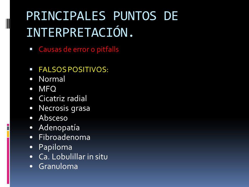 PRINCIPALES PUNTOS DE INTERPRETACIÓN.