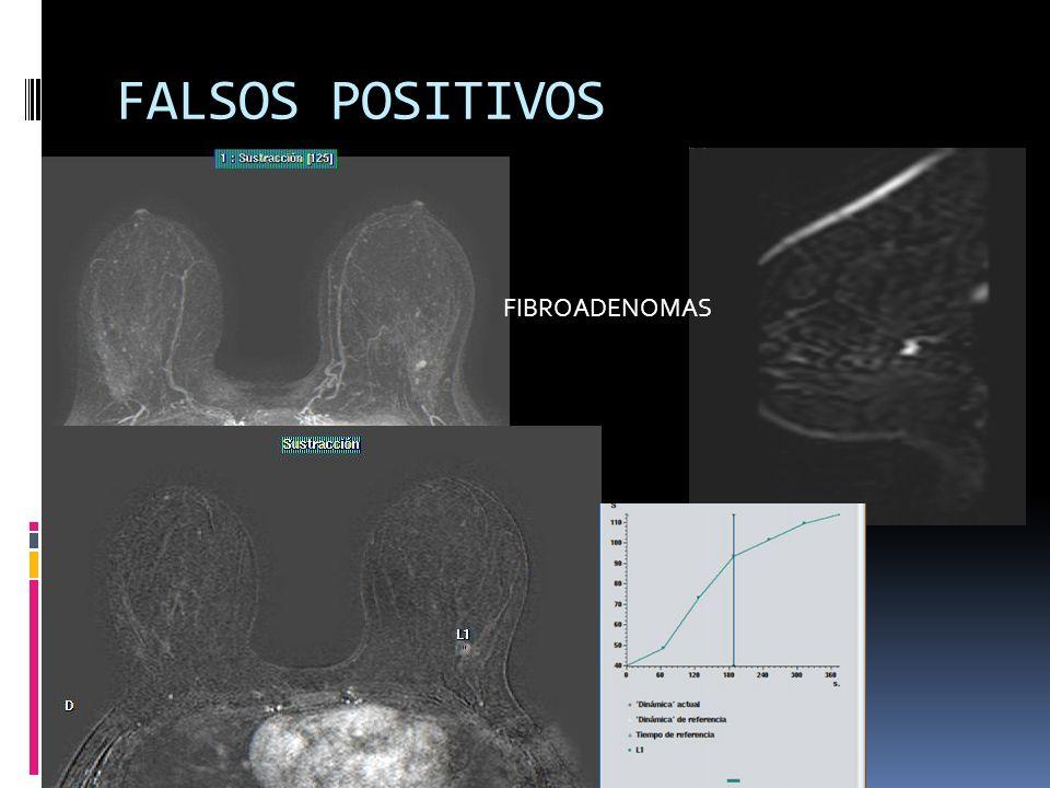 FALSOS POSITIVOS FIBROADENOMAS