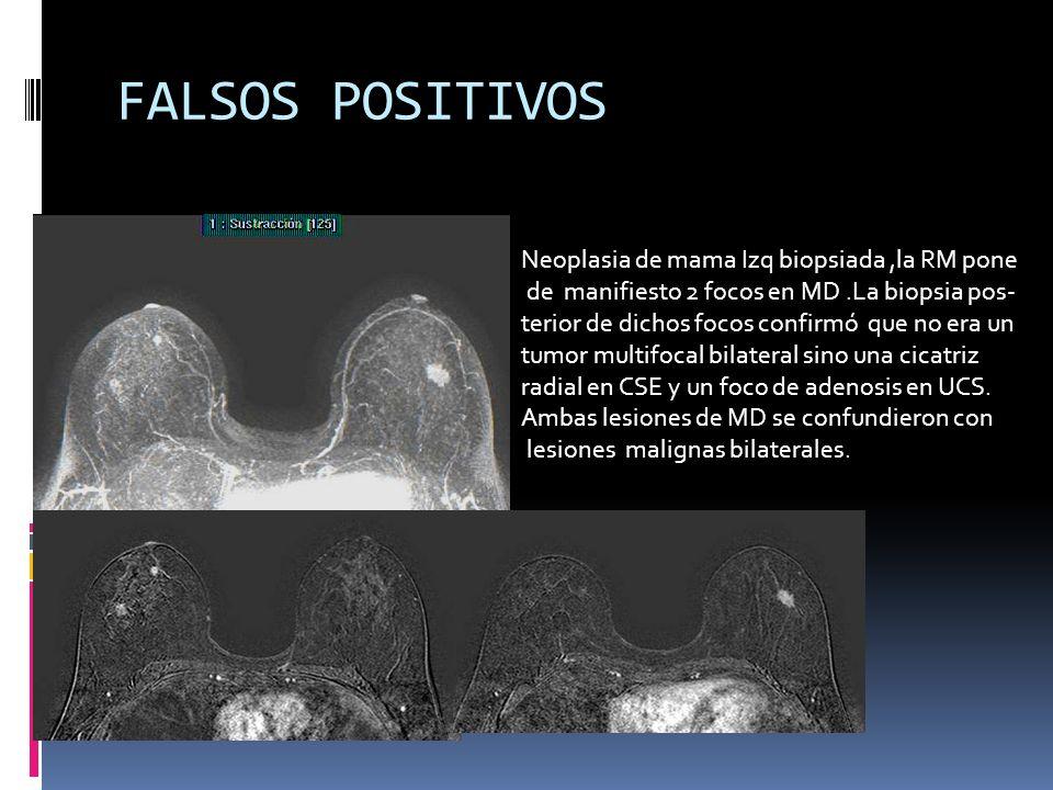 FALSOS POSITIVOS Neoplasia de mama Izq biopsiada ,la RM pone