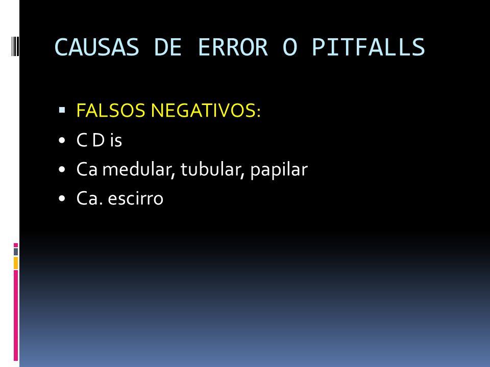CAUSAS DE ERROR O PITFALLS