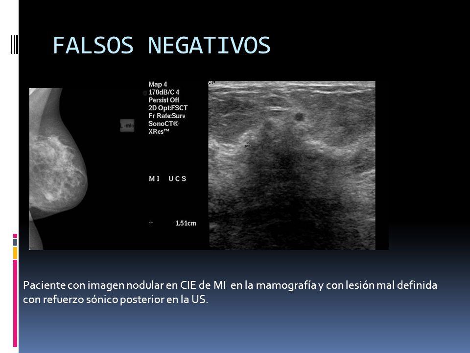 FALSOS NEGATIVOS Paciente con imagen nodular en CIE de MI en la mamografía y con lesión mal definida.