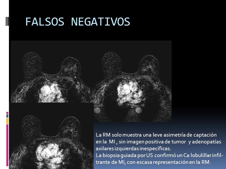 FALSOS NEGATIVOS La RM solo muestra una leve asimetría de captación
