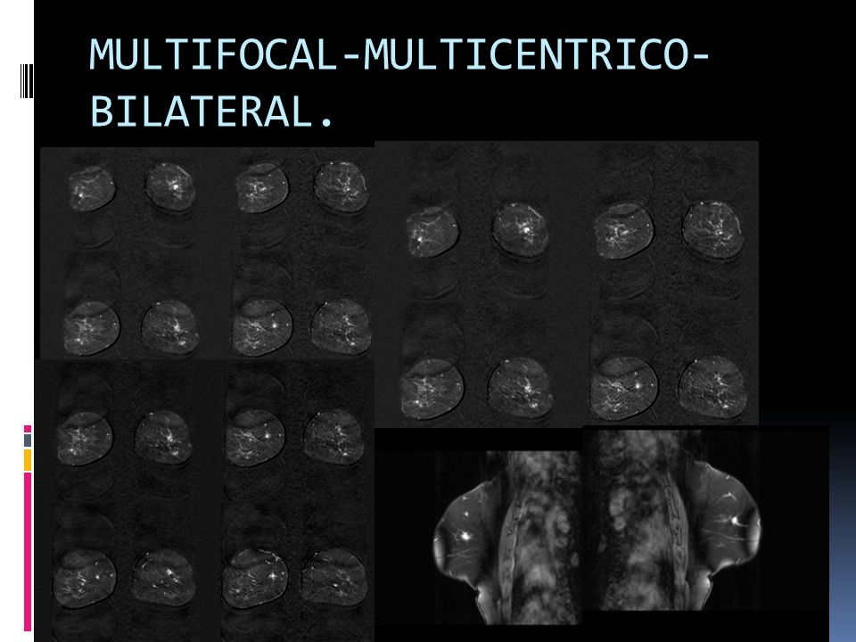 MULTIFOCAL-MULTICENTRICO-BILATERAL.