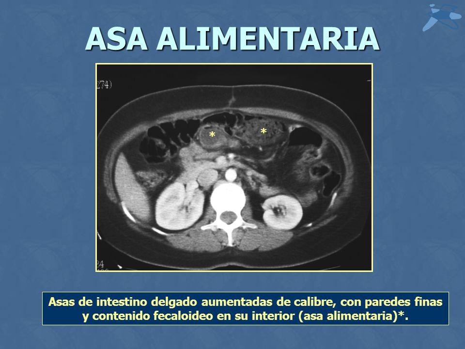 ASA ALIMENTARIA Asas de intestino delgado aumentadas de calibre, con paredes finas y contenido fecaloideo en su interior (asa alimentaria)*.