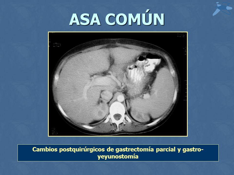 Cambios postquirúrgicos de gastrectomía parcial y gastro-yeyunostomía