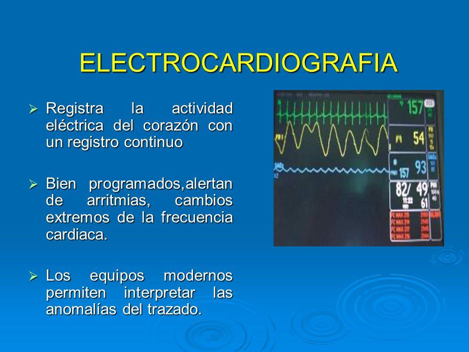 ELECTROCARDIOGRAFIA Registra la actividad eléctrica del corazón con un registro continuo.