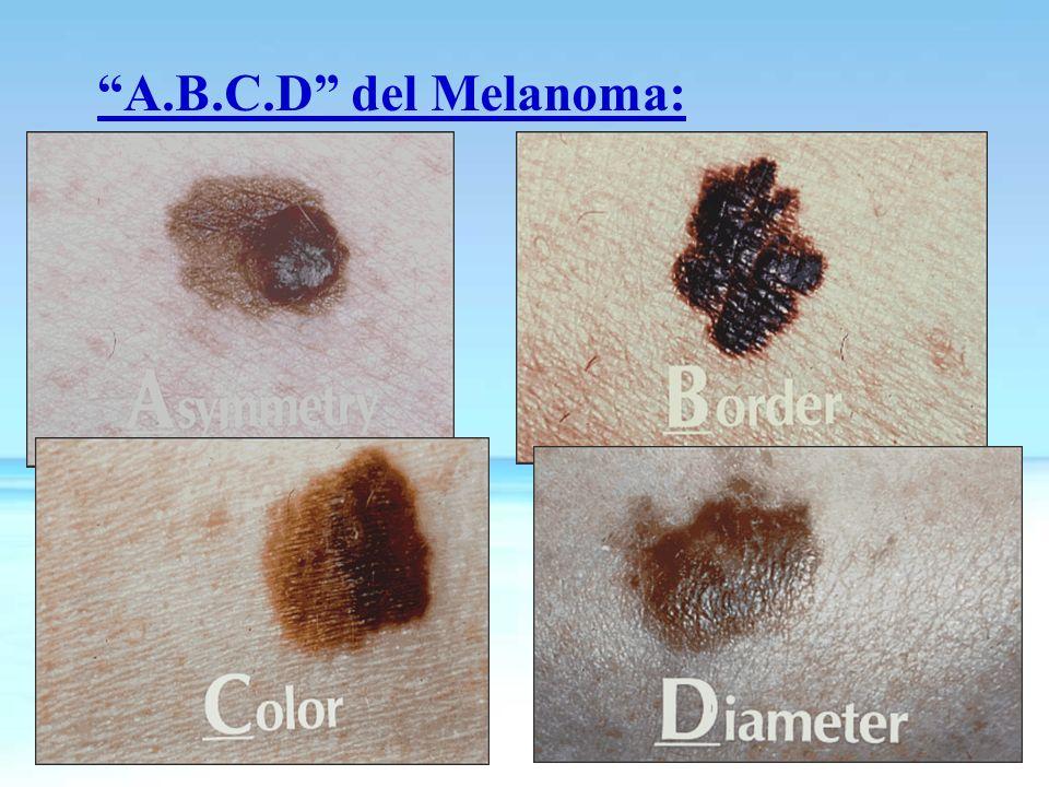 A.B.C.D del Melanoma: