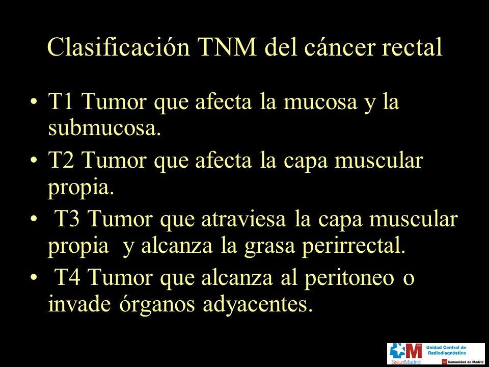 Clasificación TNM del cáncer rectal
