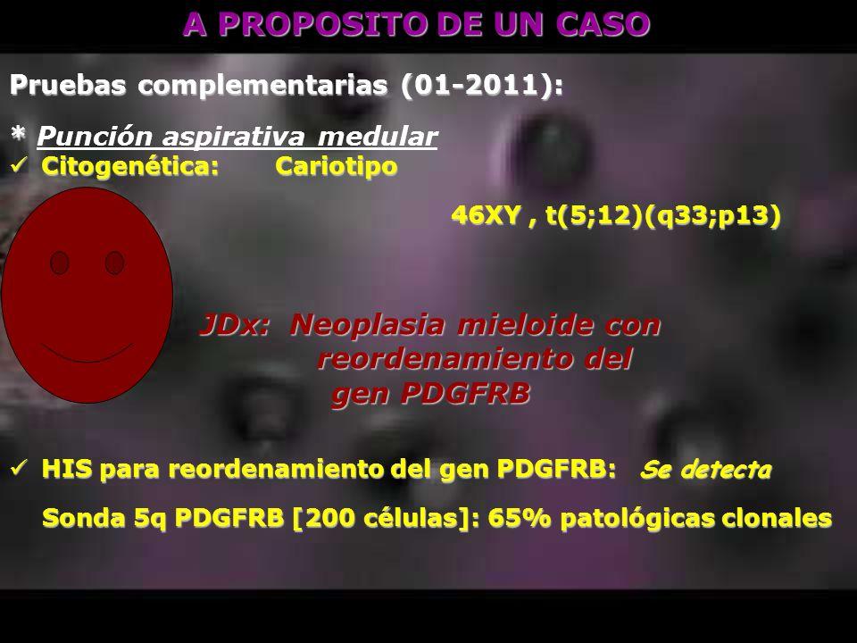 JDx: Neoplasia mieloide con reordenamiento del gen PDGFRB