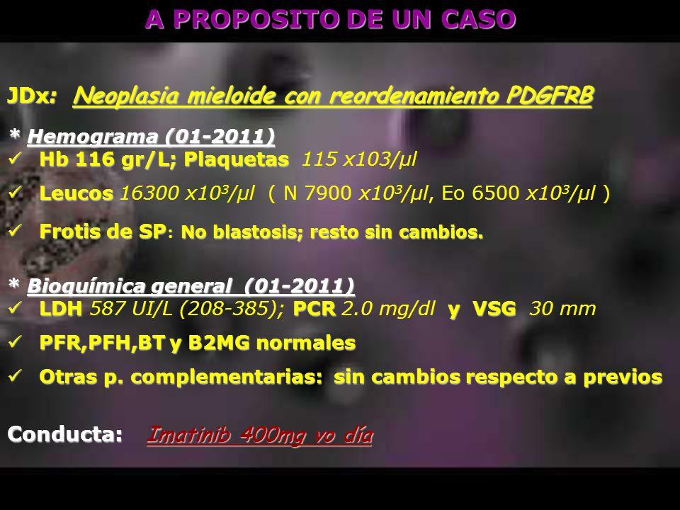 A PROPOSITO DE UN CASO JDx: Neoplasia mieloide con reordenamiento PDGFRB. * Hemograma (01-2011) Hb 116 gr/L; Plaquetas 115 x103/μl.