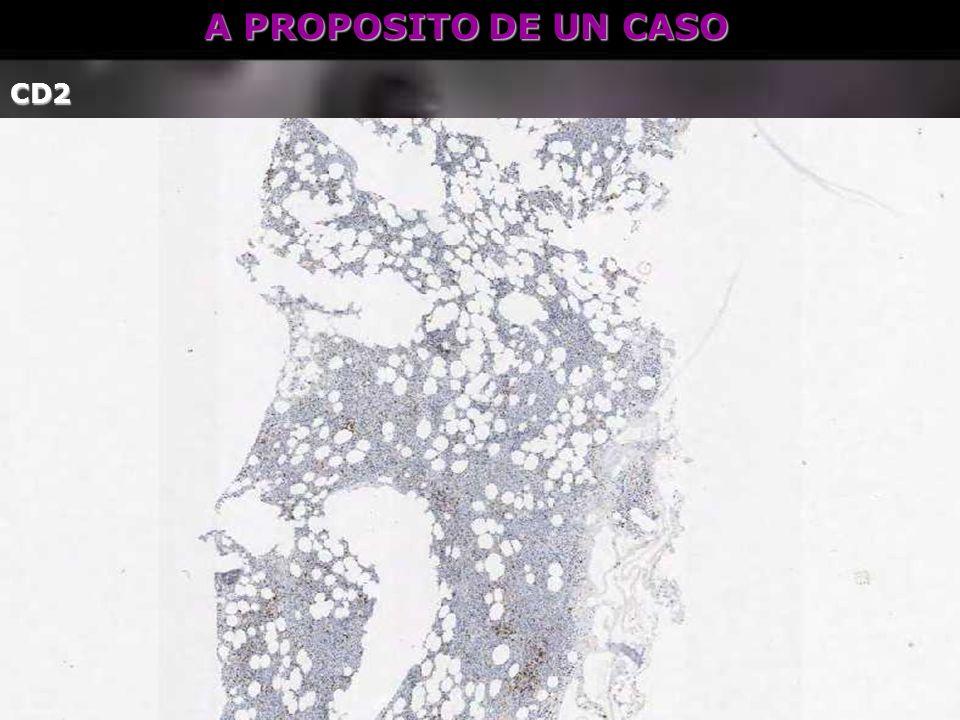 A PROPOSITO DE UN CASO CD2
