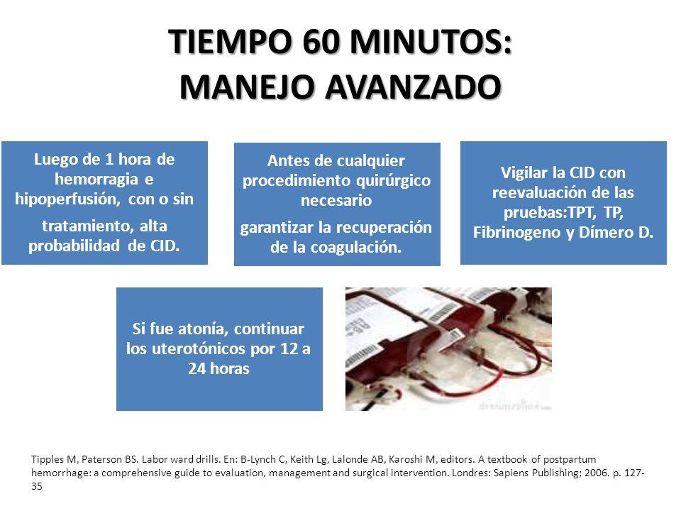 TIEMPO 60 MINUTOS: MANEJO AVANZADO