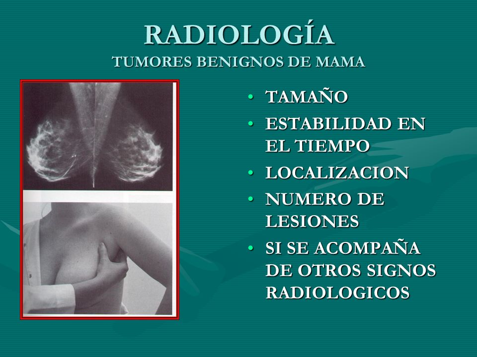 RADIOLOGÍA TUMORES BENIGNOS DE MAMA