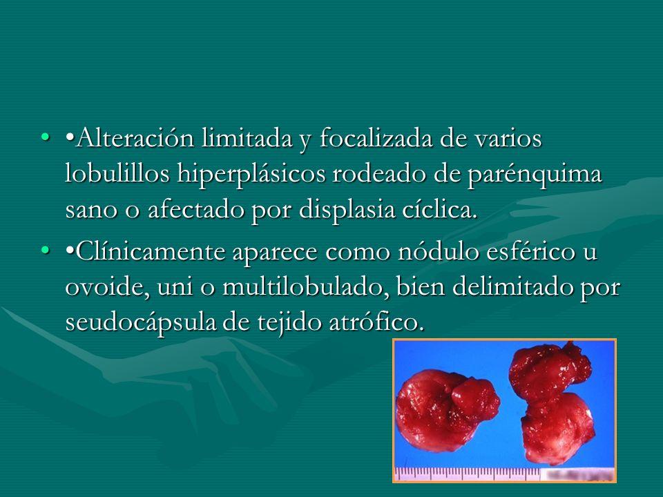 •Alteración limitada y focalizada de varios lobulillos hiperplásicos rodeado de parénquima sano o afectado por displasia cíclica.