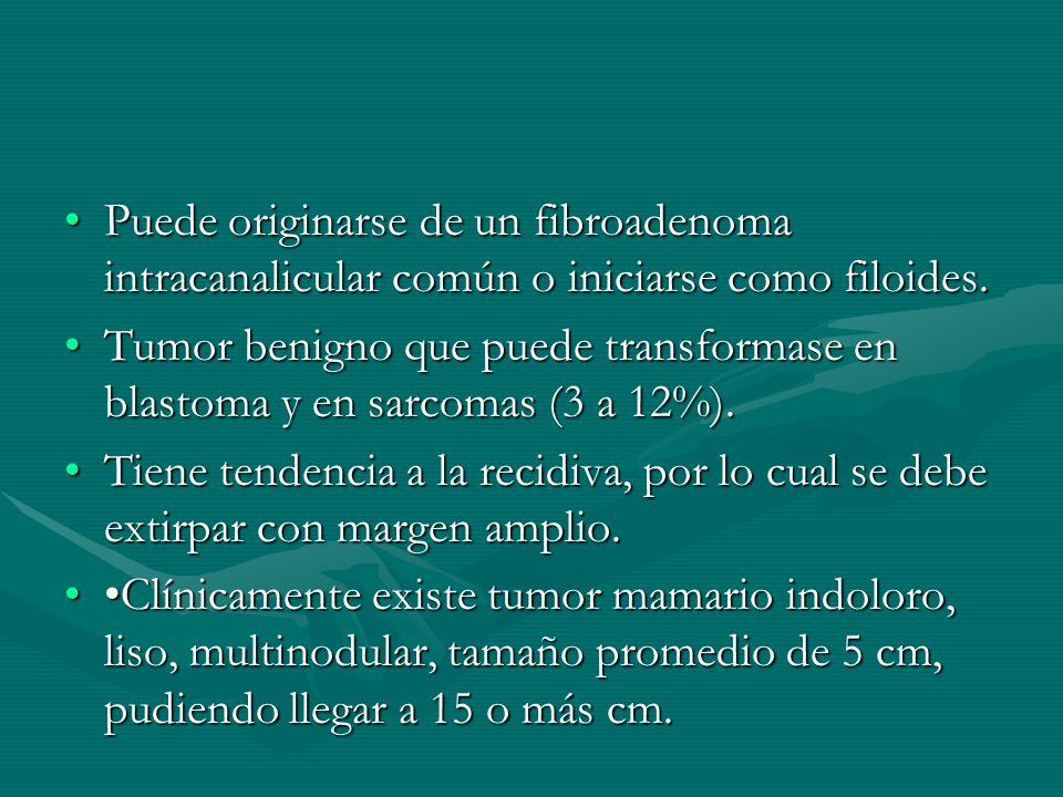 Puede originarse de un fibroadenoma intracanalicular común o iniciarse como filoides.