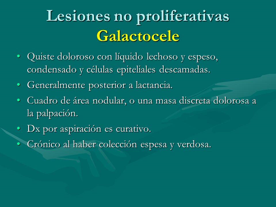 Lesiones no proliferativas Galactocele