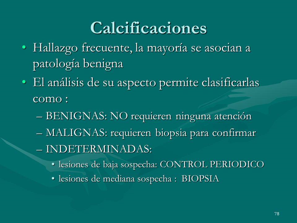 Calcificaciones Hallazgo frecuente, la mayoría se asocian a patología benigna. El análisis de su aspecto permite clasificarlas como :