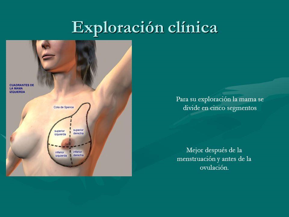 Exploración clínica Para su exploración la mama se divide en cinco segmentos.