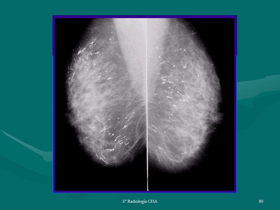 Sº Radiología CHA