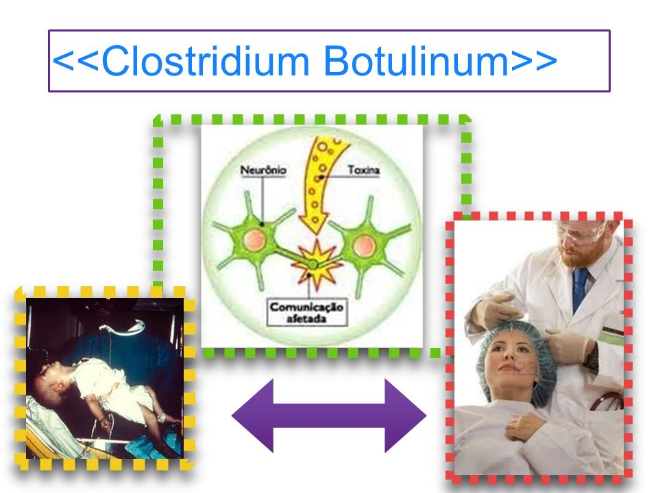<<Clostridium Botulinum>>