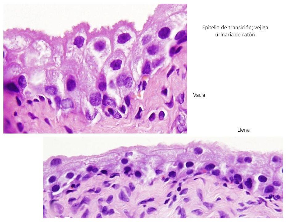 Epitelio de transición; vejiga urinaria de ratón
