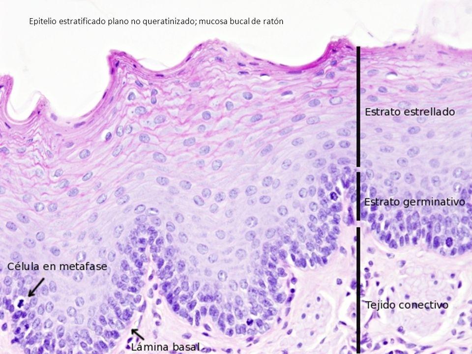 Epitelio estratificado plano no queratinizado; mucosa bucal de ratón
