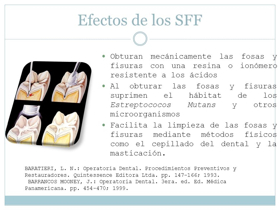 Efectos de los SFF Obturan mecánicamente las fosas y fisuras con una resina o ionómero resistente a los ácidos.