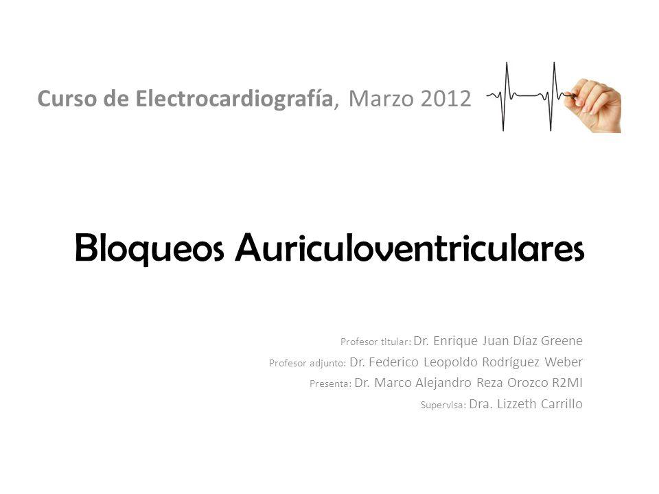 Bloqueos Auriculoventriculares