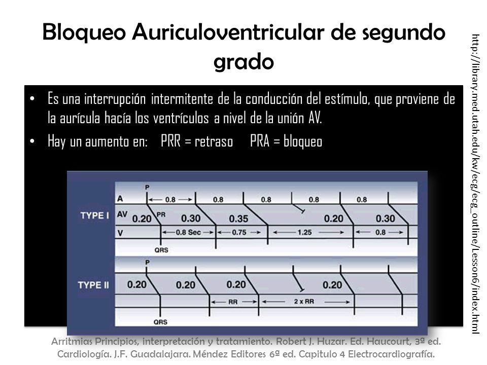 Bloqueo Auriculoventricular de segundo grado