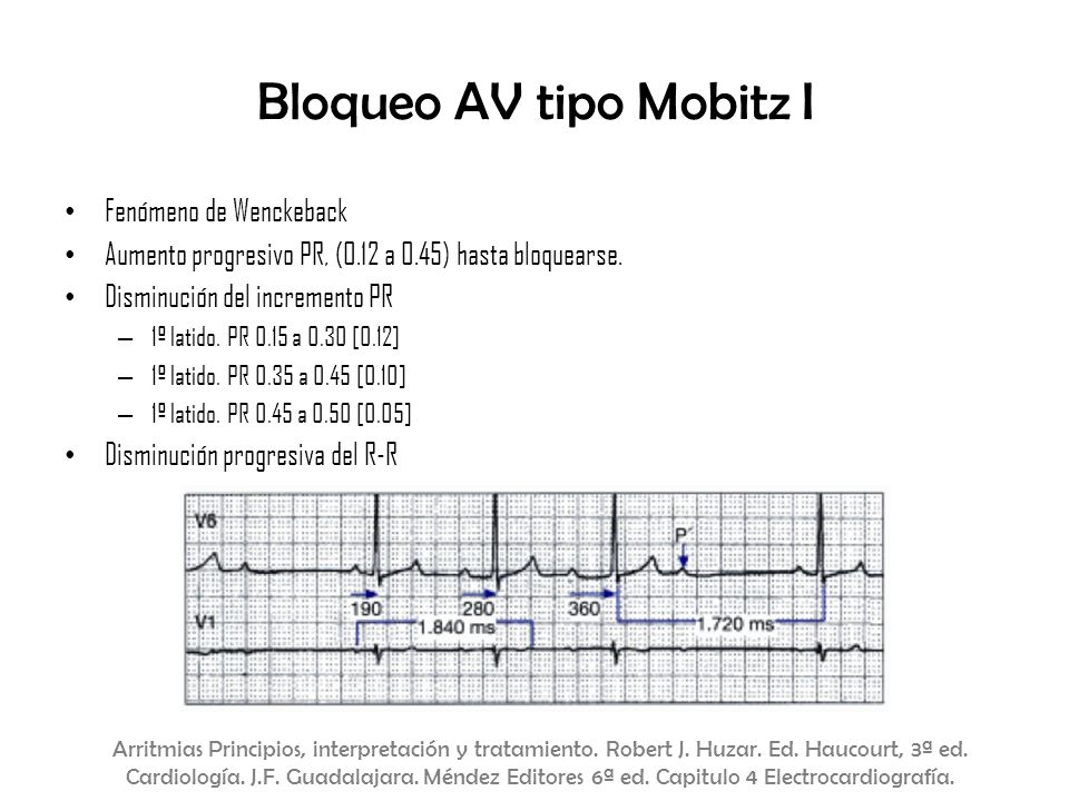 Bloqueo AV tipo Mobitz I