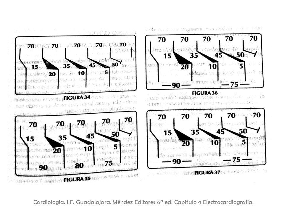 Cardiología. J. F. Guadalajara. Méndez Editores 6ª ed