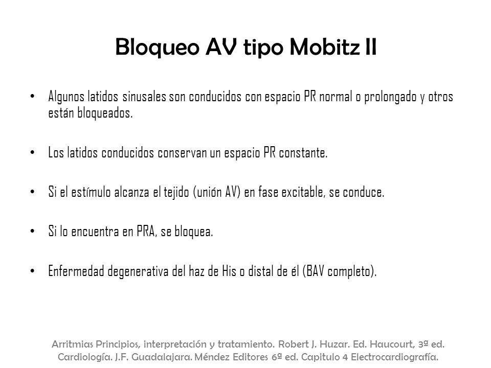 Bloqueo AV tipo Mobitz II