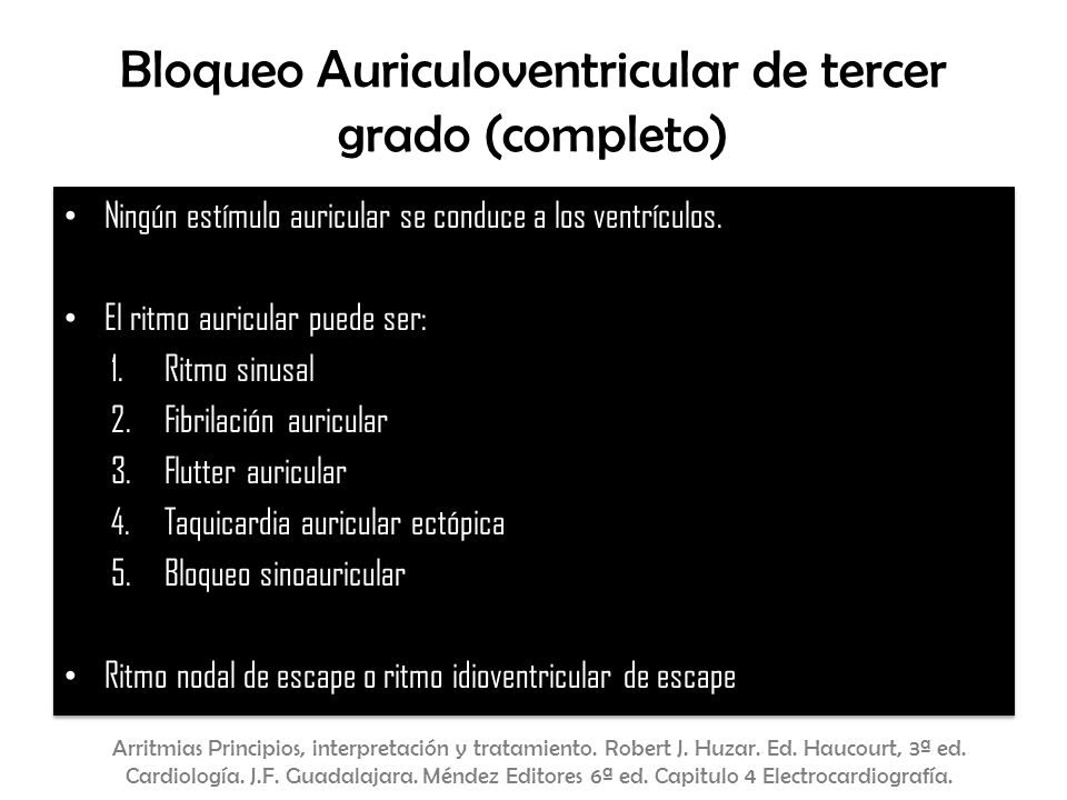 Bloqueo Auriculoventricular de tercer grado (completo)