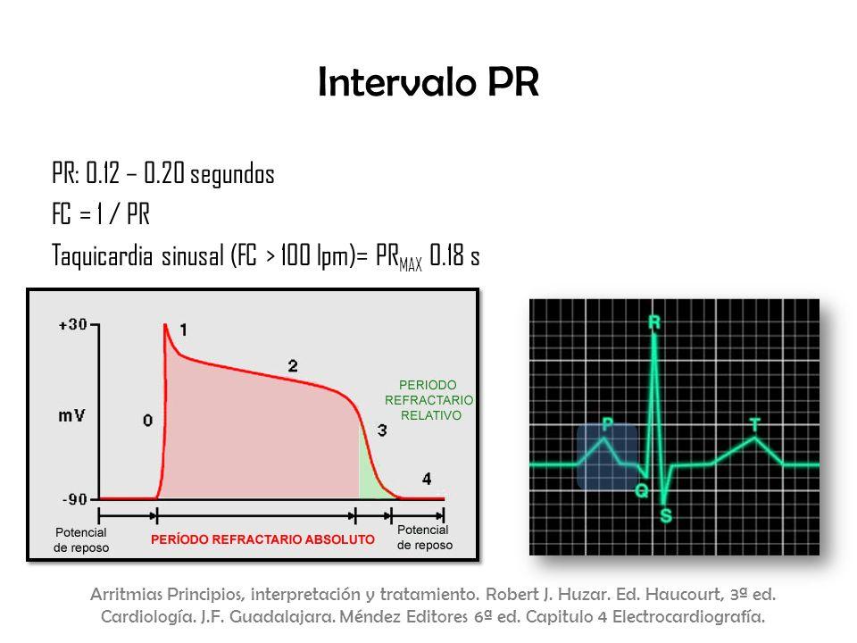 Intervalo PR PR: 0.12 – 0.20 segundos FC = 1 / PR Taquicardia sinusal (FC > 100 lpm)= PRMAX 0.18 s