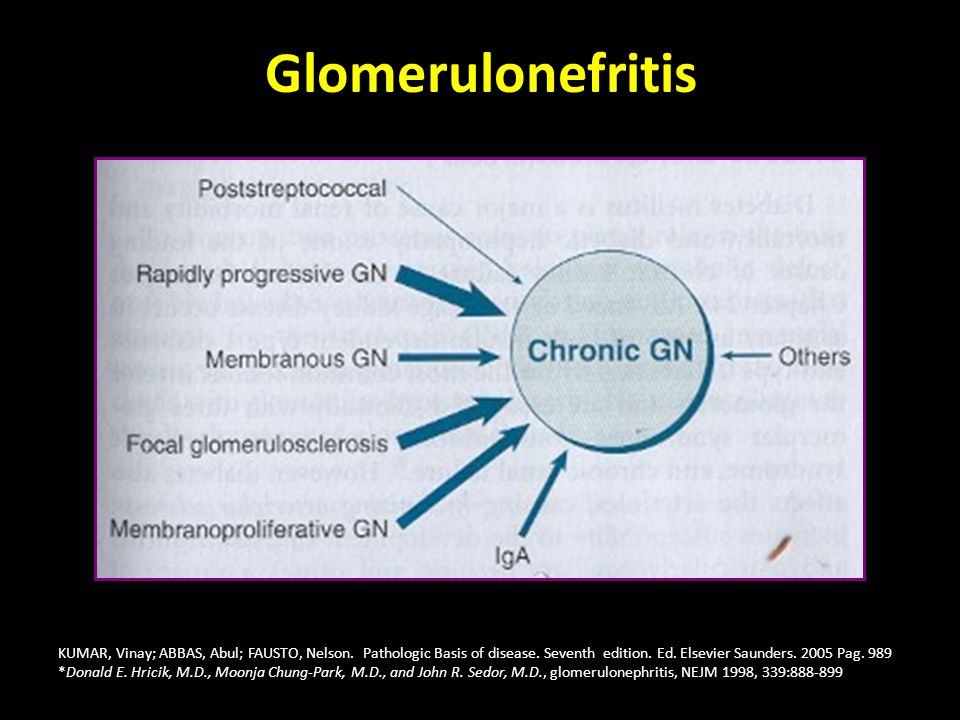 Glomerulonefritis KUMAR, Vinay; ABBAS, Abul; FAUSTO, Nelson. Pathologic Basis of disease. Seventh edition. Ed. Elsevier Saunders. 2005 Pag. 989.