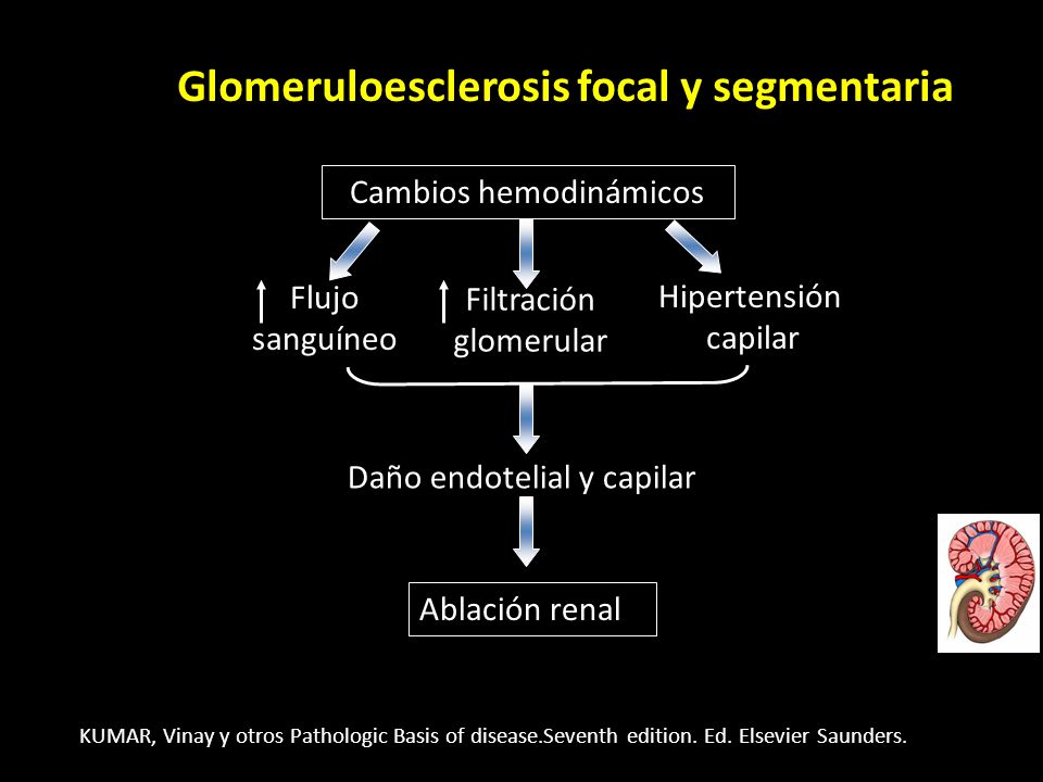 Glomeruloesclerosis focal y segmentaria