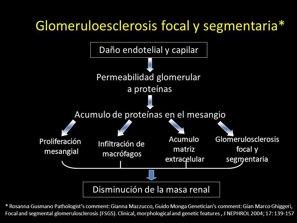 Glomeruloesclerosis focal y segmentaria*