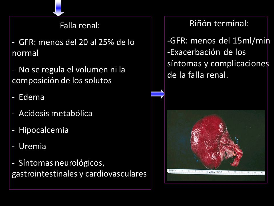 Riñón terminal: GFR: menos del 15ml/min -Exacerbación de los síntomas y complicaciones de la falla renal.