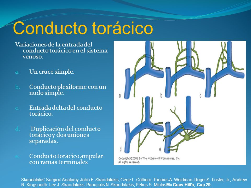 Conducto torácico Variaciones de la entrada del conducto torácico en el sistema venoso. Un cruce simple.