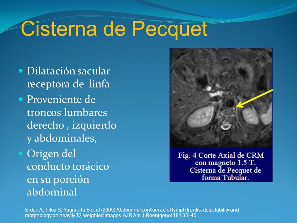 Cisterna de Pecquet Dilatación sacular receptora de linfa