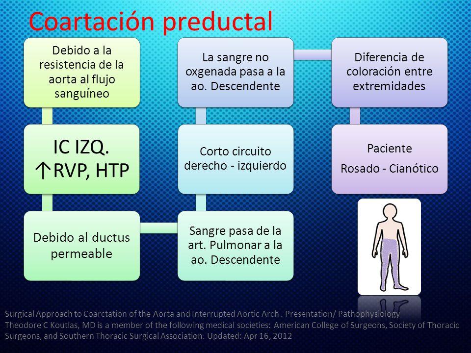 Coartación preductal IC IZQ. ↑RVP, HTP Debido al ductus permeable