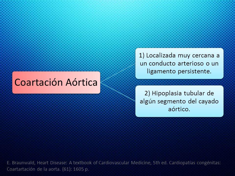 2) Hipoplasia tubular de algún segmento del cayado aórtico.