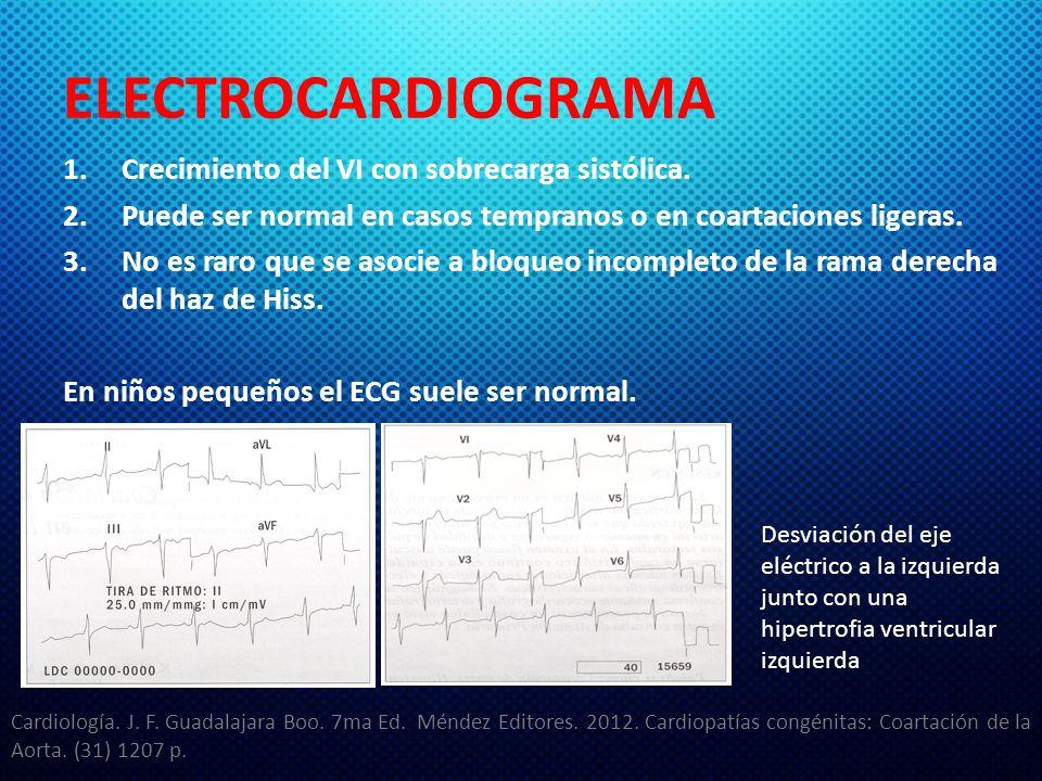 ELECTROCARDIOGRAMA Crecimiento del VI con sobrecarga sistólica.