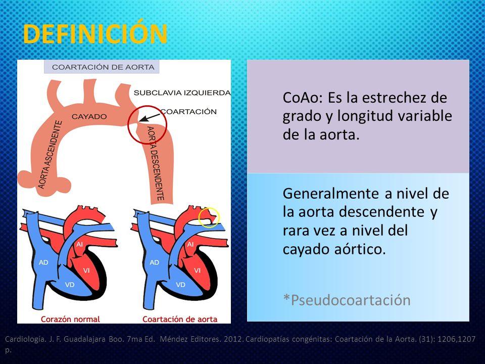 DEFINICIÓN CoAo: Es la estrechez de grado y longitud variable de la aorta.