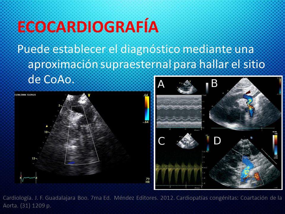 ECOCARDIOGRAFÍA Puede establecer el diagnóstico mediante una aproximación supraesternal para hallar el sitio de CoAo.