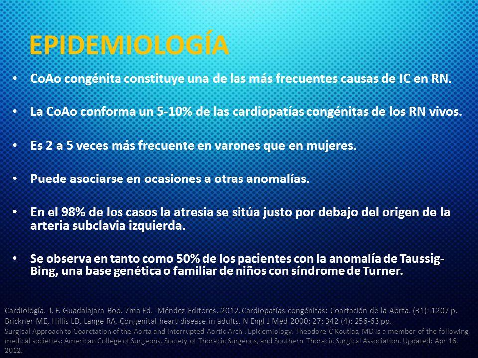 EPIDEMIOLOGÍA CoAo congénita constituye una de las más frecuentes causas de IC en RN.