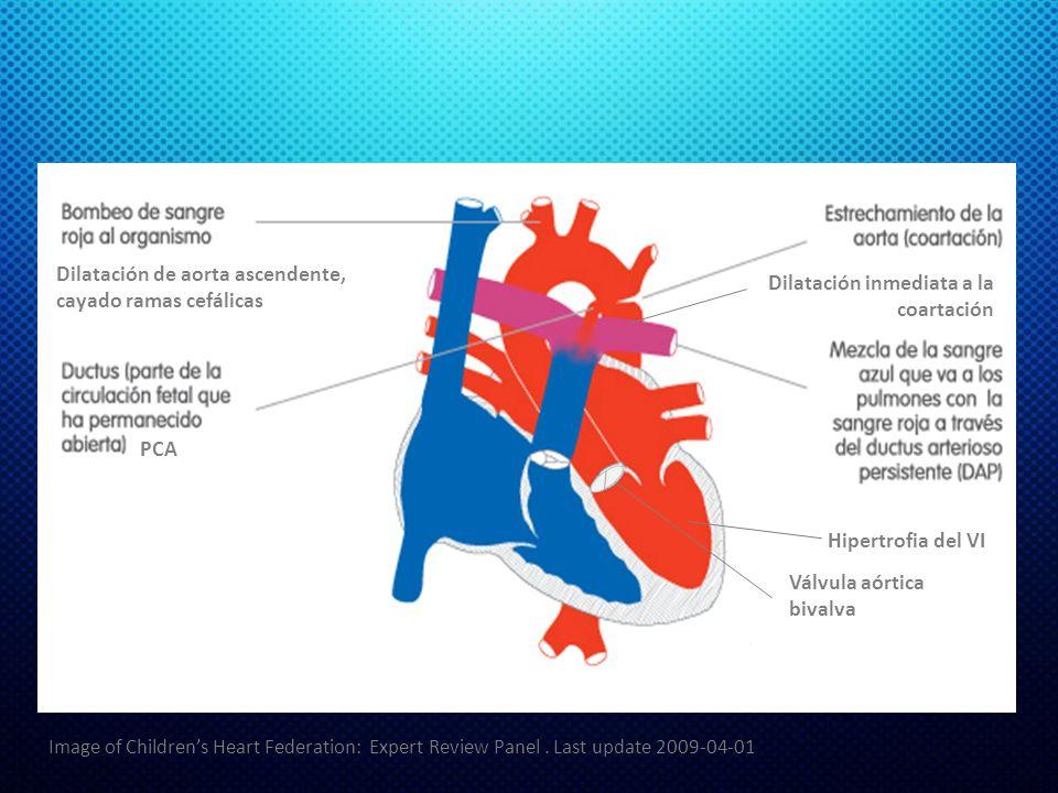Dilatación de aorta ascendente, cayado ramas cefálicas