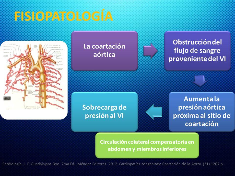 FISIOPATOLOGÍA La coartación aórtica. Obstrucción del flujo de sangre proveniente del VI.