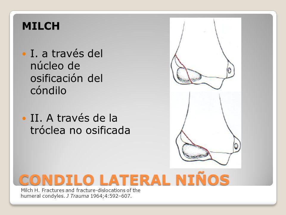 CONDILO LATERAL NIÑOS MILCH